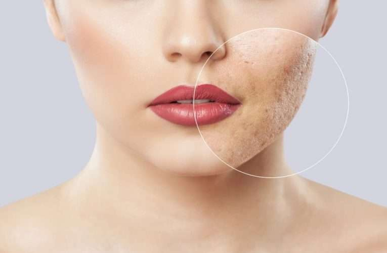 6 Ways You Can Treat Acne Scars At Home