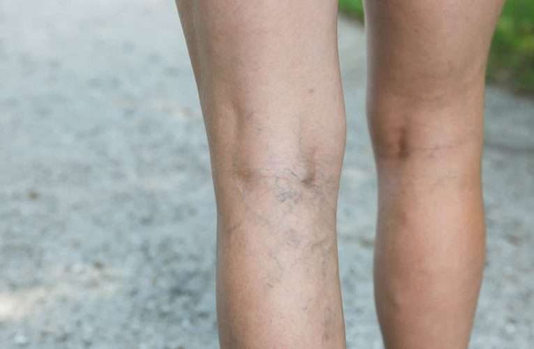 what is a Vein Disease?