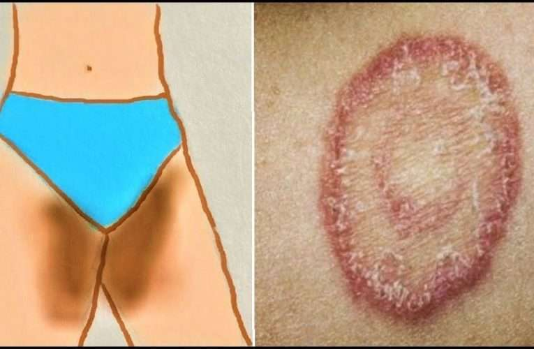 What Is Fungal Infection (Mycosis)?